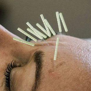 Mornington Chinese Medicine Cosmetic Acupuncture