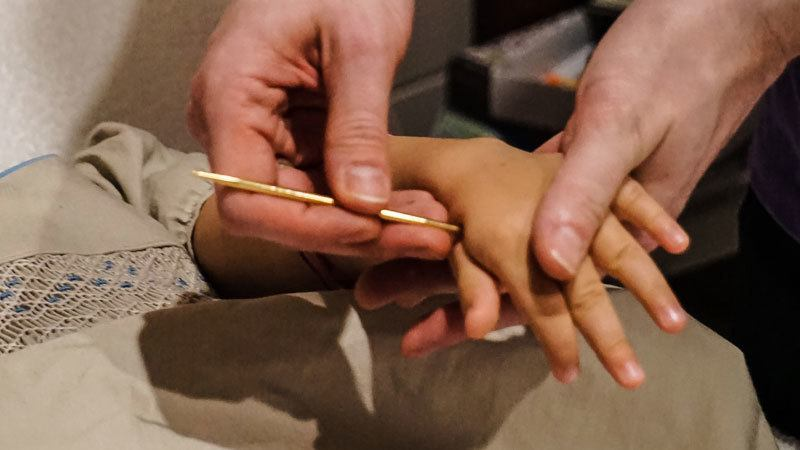 Shonishin Japanese Paediatric Acupuncture 11